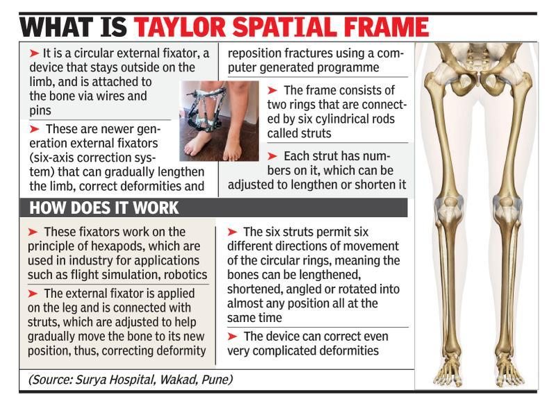 Patients with limb deformity treated using six-axis system | Pune ...