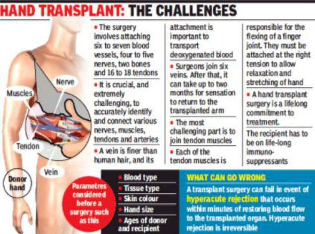 Maharashtras First Double Hand Transplant Fails As Patients Body