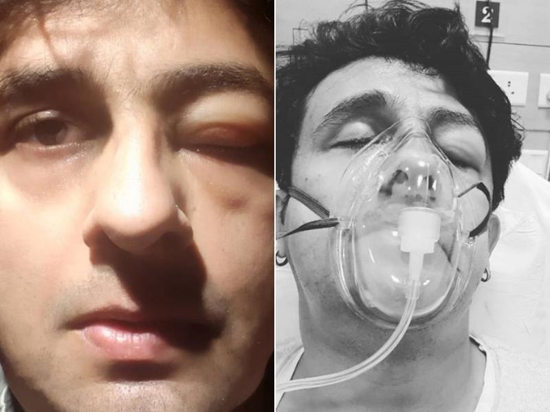 Image result for sonu nigam allergic