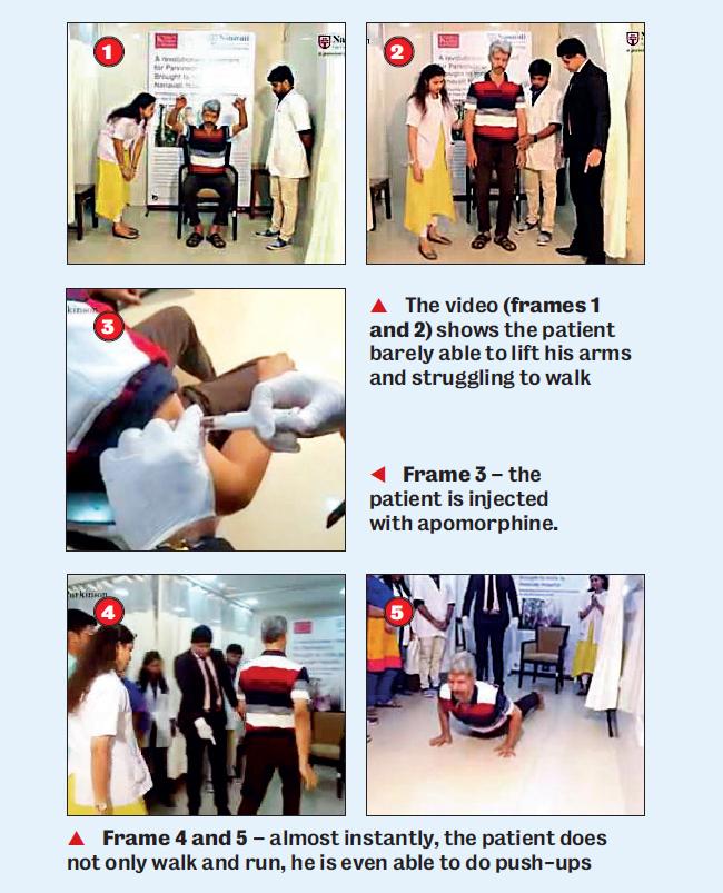 Mumbai Hospital viral video gives false impression of miracle drug for Parkinson's