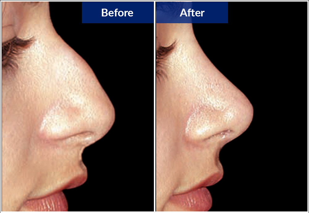 before-after-nose-1