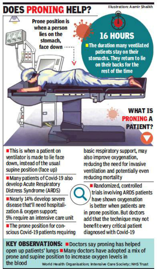 Maharashtra: Doctors place some Covid-19 patients on stomach to beat ARDS |  Pune News - Times of India