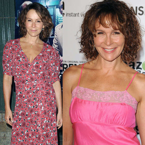 Stars Before & After Cosmetic Surgeries