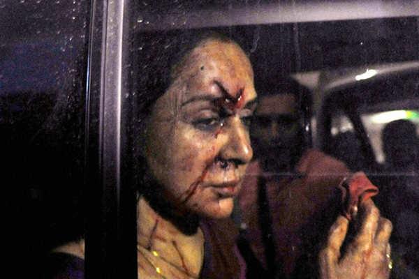 Hema Malini's car accident: Here's what happened
