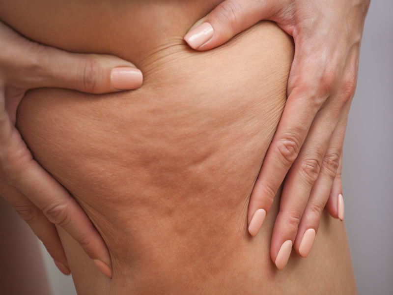 Things that could be giving you 'ugly' cellulite