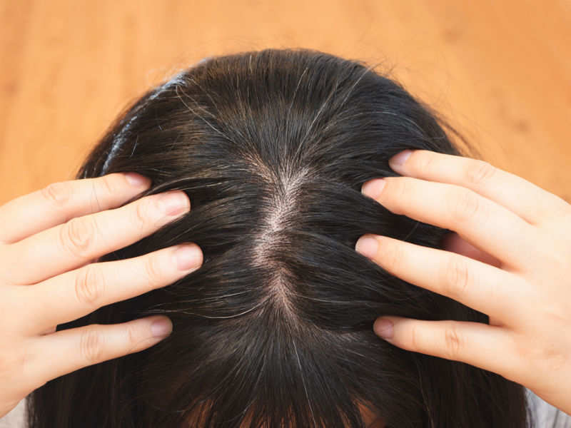 How To Get Rid Of Gray Hair Naturally At Home