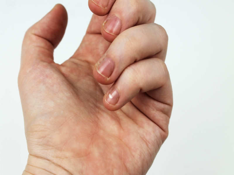 What are hangnails?