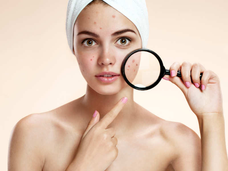 How to treat dark spots at home | The Times of India