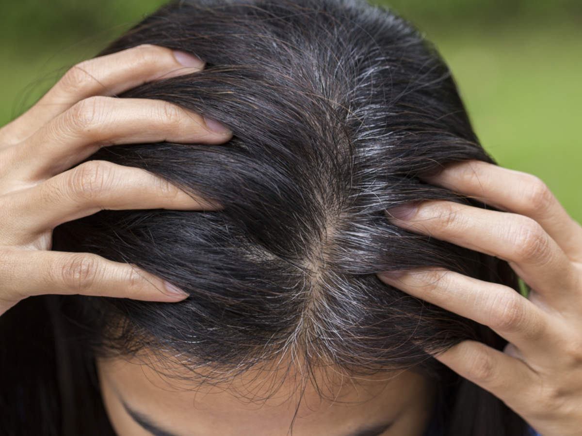 Grey hair at 30? Home remedies to REVERSE the problem | Home ...