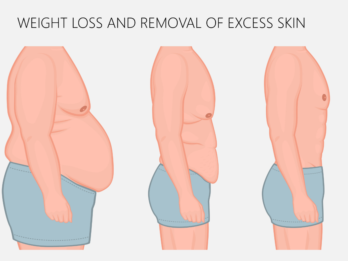 Weight after tighten loss skin 10 Ways