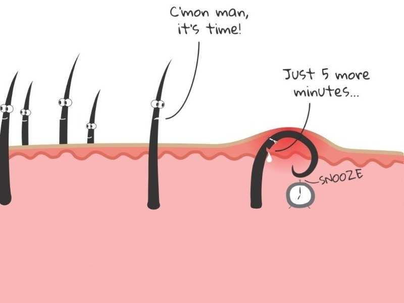 Ingrown Hair Removal: Here's How You Can Get Rid Of Ingrown Hair