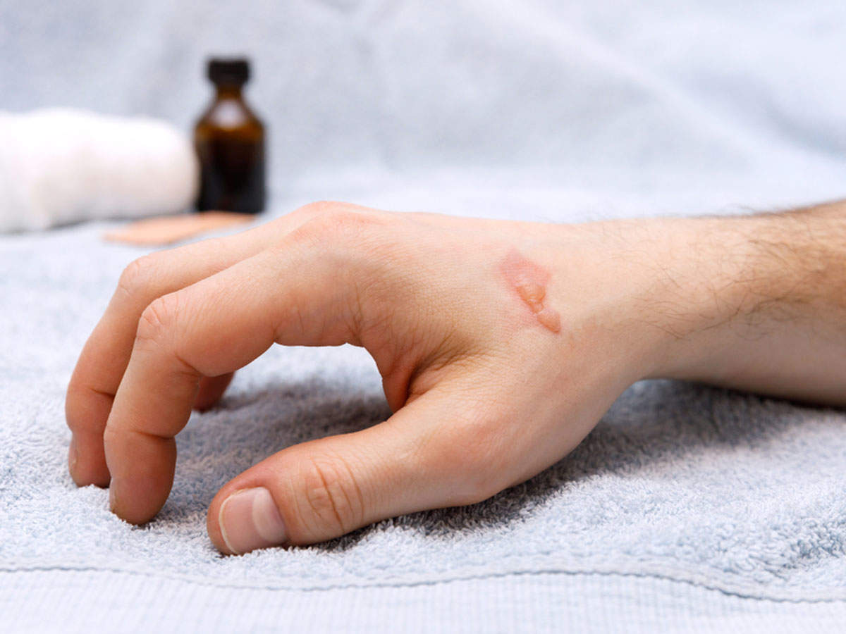 Effective home remedies to soothe burns | The Times of India