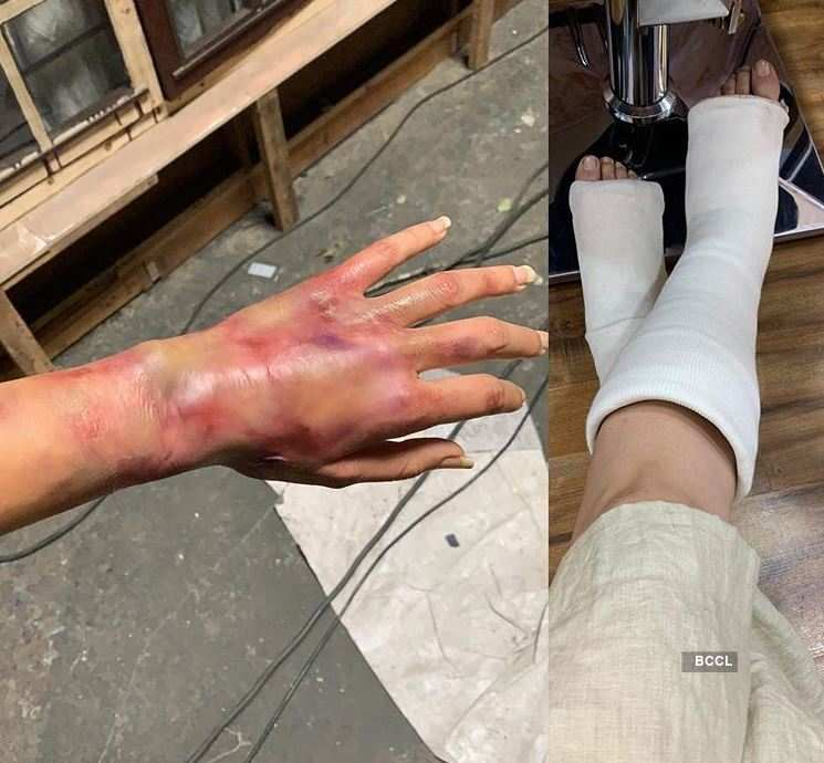 """Taapsee Pannu shares photos of her """"injured hand"""" and """"fractured legs"""""""