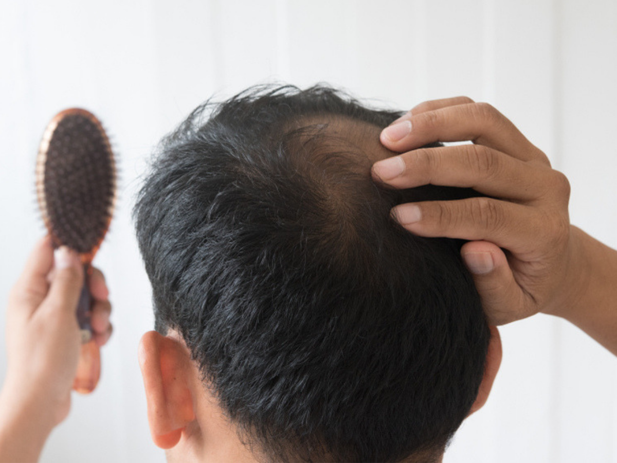 Eat These Fruits To Prevent Baldness Times Of India