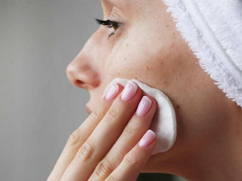 Image result for acne prone skin