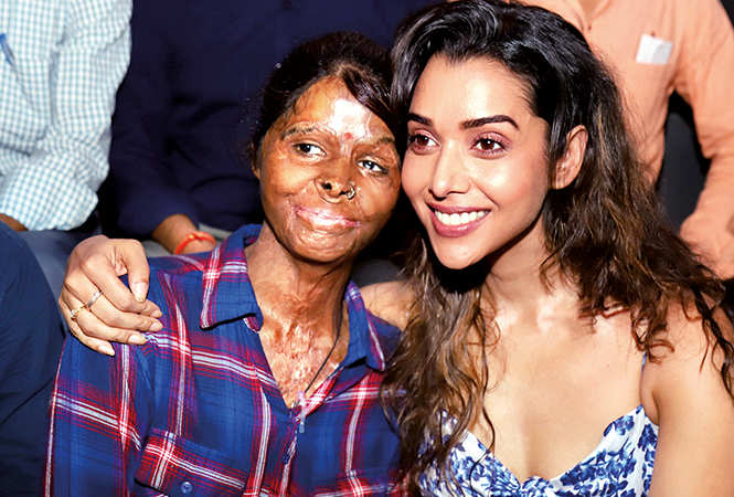 During her recent visit to the city actress Anupriya Goenka spent some time with the acid  attack survivors who run a cafe in Gomti Nagar (BCCL/ Aditya Yadav)
