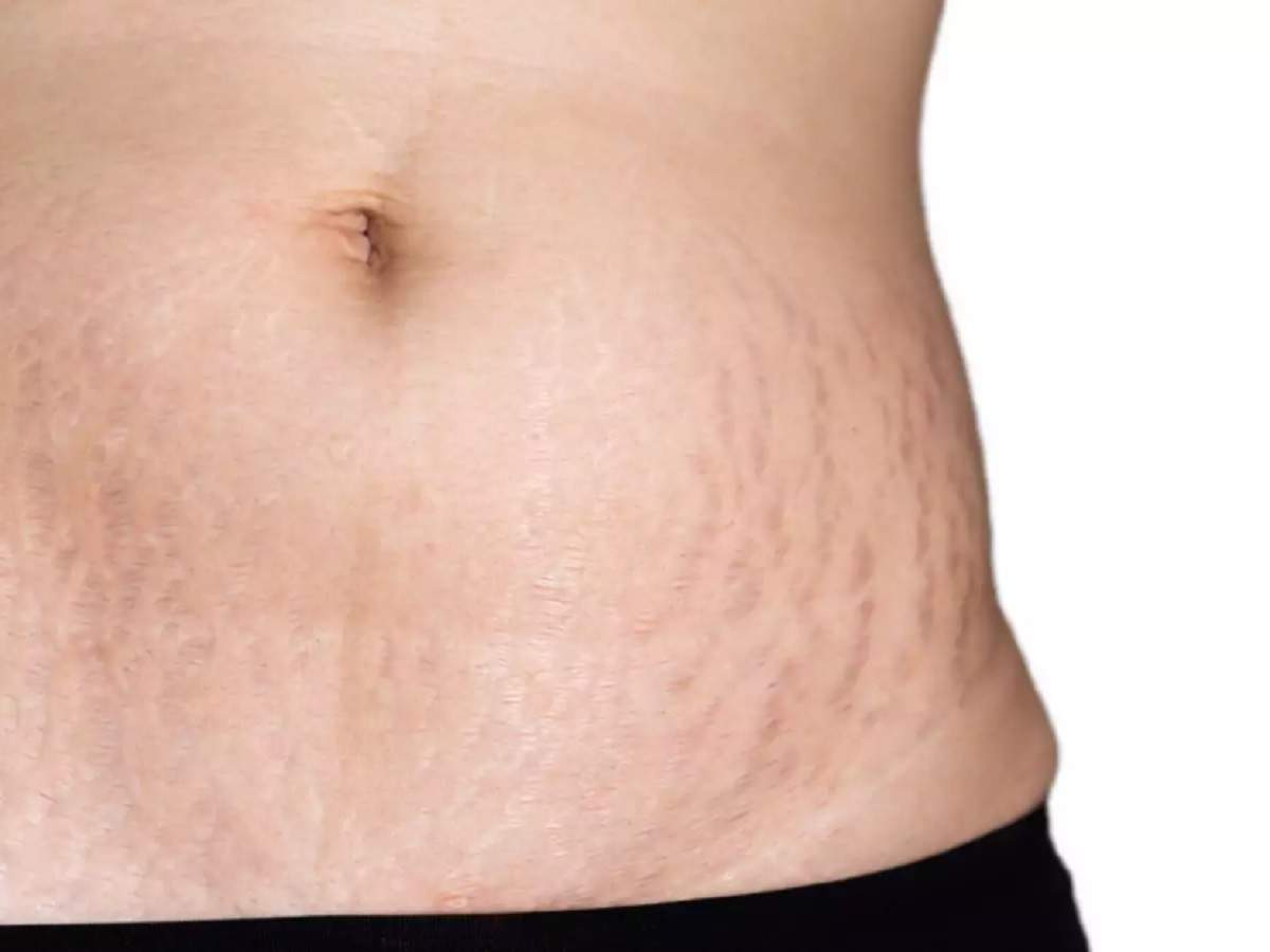 Stretch marks problem? Try these oils, creams & more