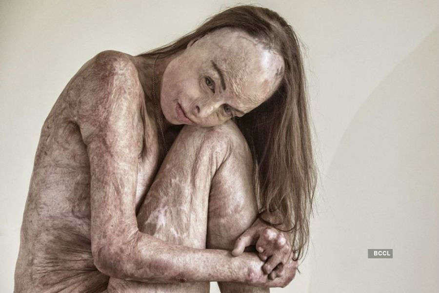 Burns survivor poses naked for powerful portrait