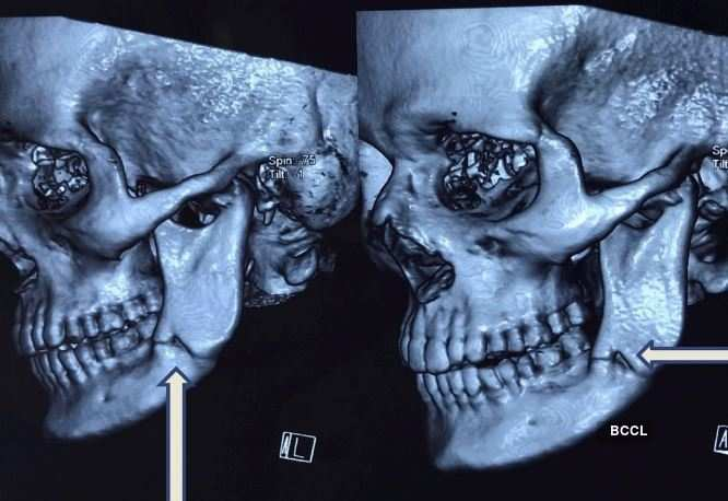 Dental Surgeon from JMI reports a novel discovery in human lower jaw