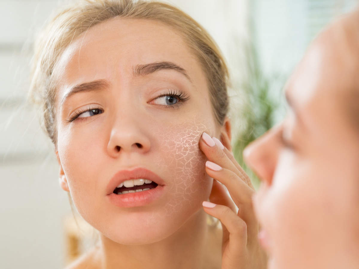 Suffer from very dry skin? These are the reasons! | The Times of India