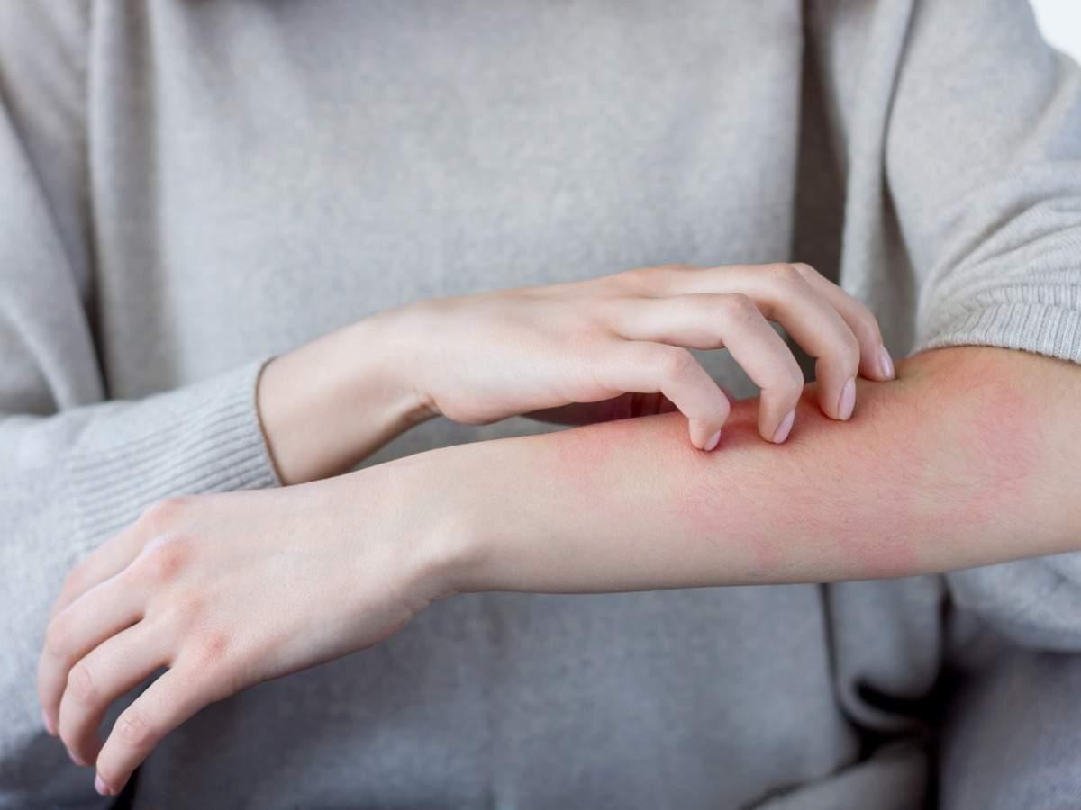 Coronavirus vaccine: Strangest side-effects of COVID-19 vaccine discovered so far