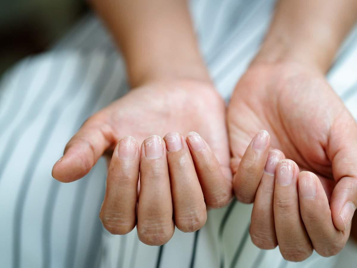Coroanvirus Symptoms: COVID nails could be a sign that you have had COVID: Here's how to identify it