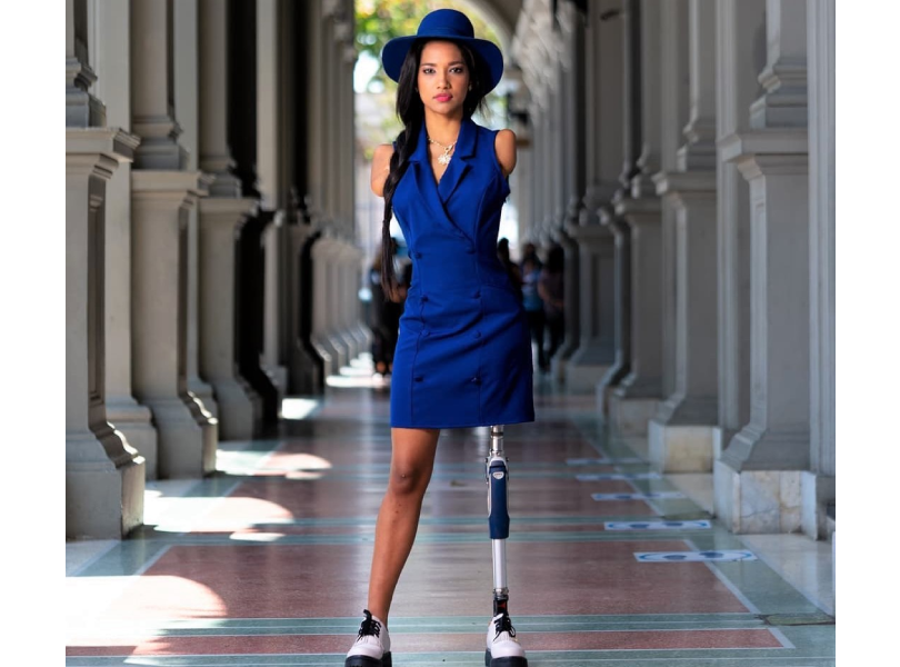Beauty queen with no arms and a leg shares a powerful message of inclusivity!