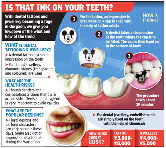 """1bc6cb4eb Tooth jewellery's popularity owes itself to the fact that it is painless  and can be removed anytime. """"Dental jewellery is absolute fun."""