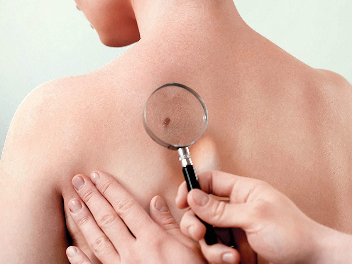 Here S How You Can Spot Telltale Signs Of Skin Cancer
