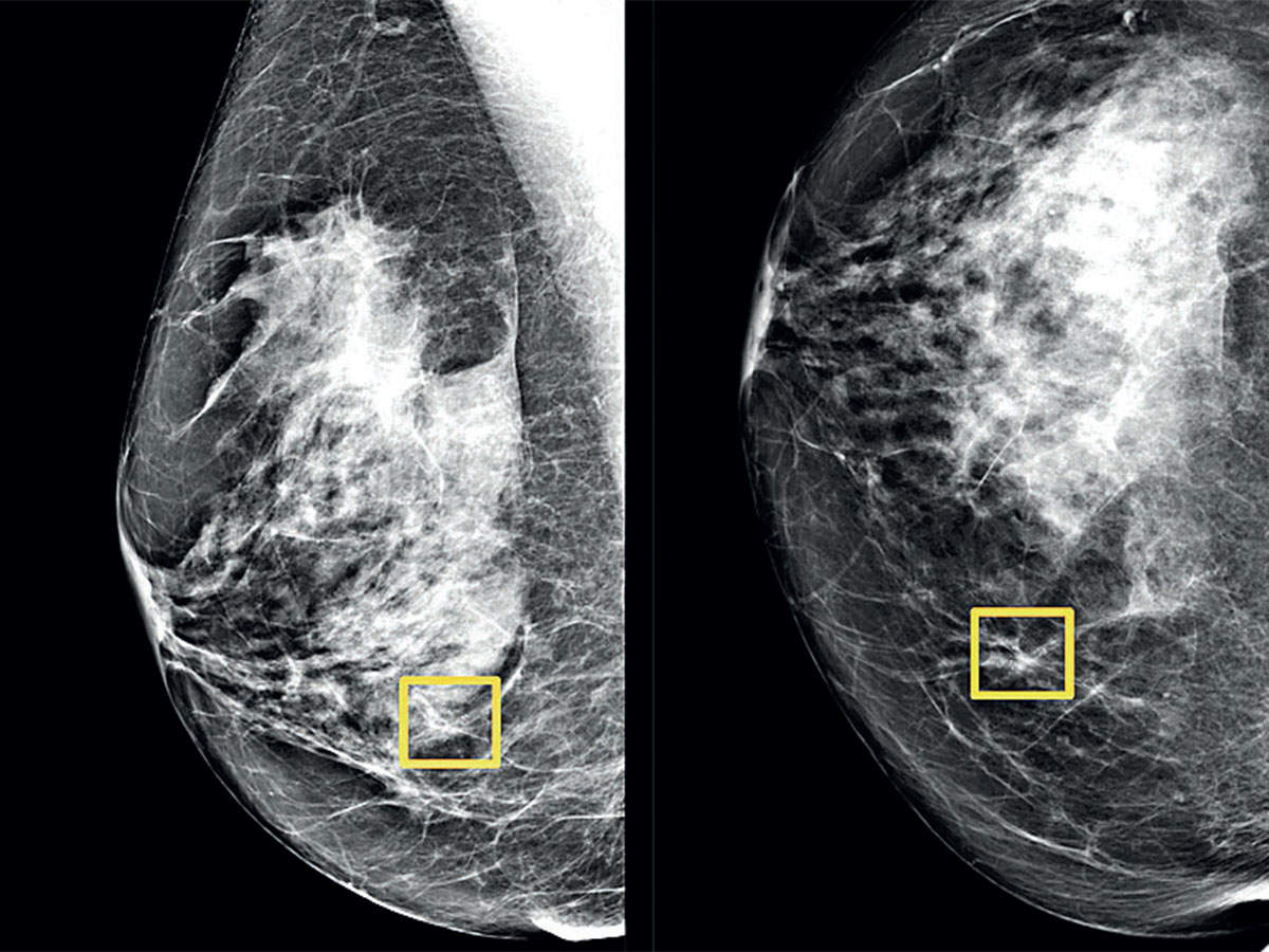 Google AI could improve breast cancer detection - Pune Mirror thumbnail