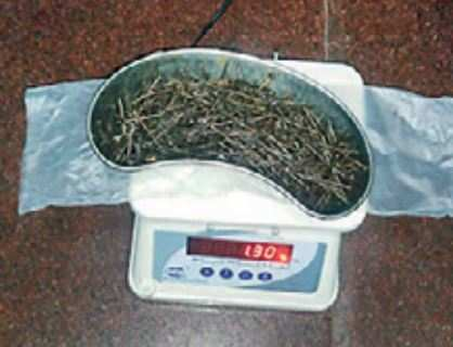 Doctors extract 639 nails from a man's intestine - Times of India