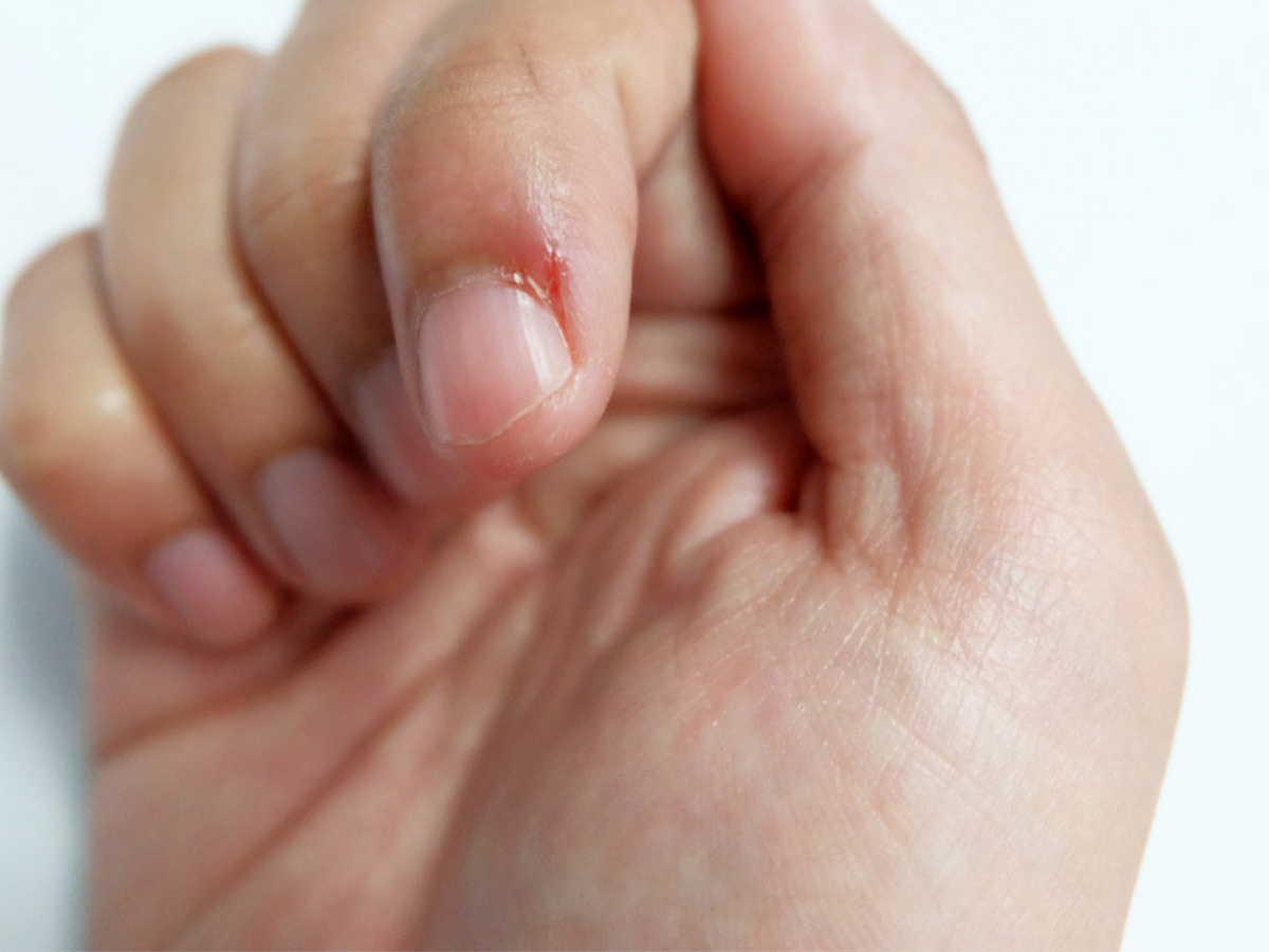 Skin Picking Disorder A Disorder Dangerous Than Nail Biting Itself What Is Skin Picking Signs Cause And How To Stop It