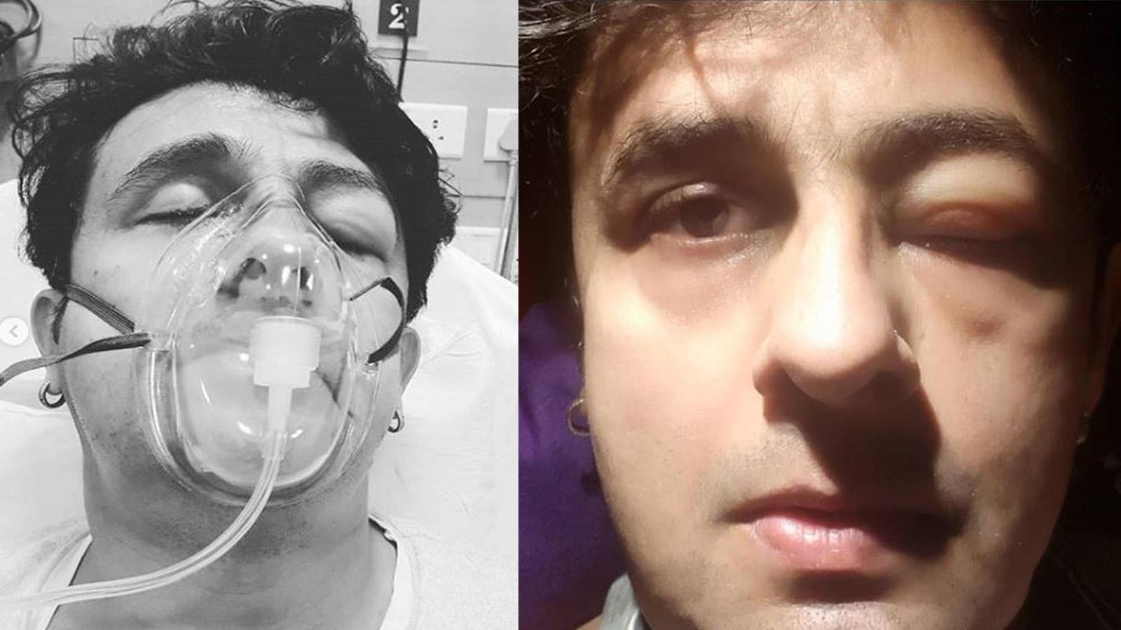 Sonu Nigam gets swollen eye, shares photograph on social media