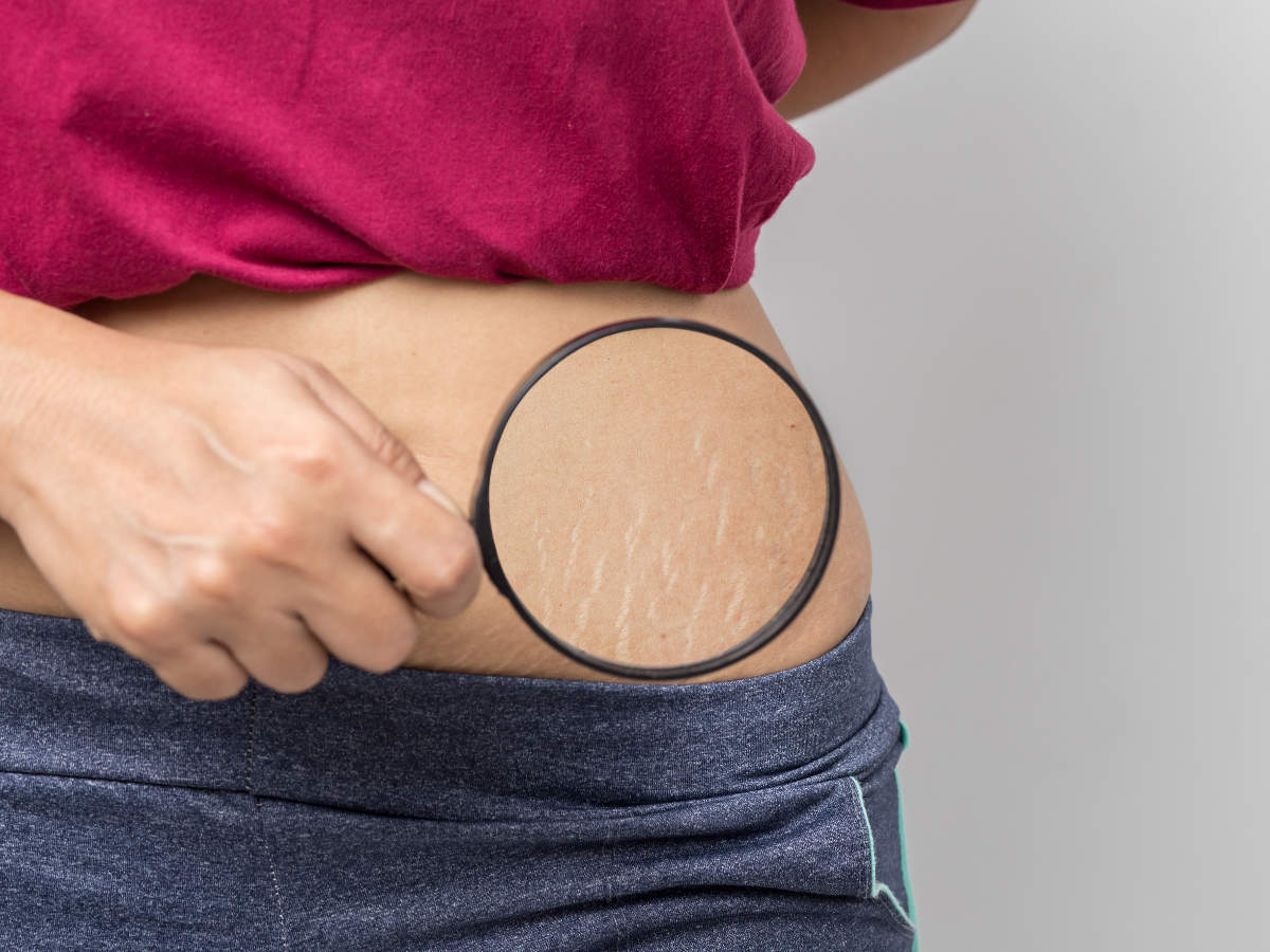 Stretch Marks Home Remedies Remove Your Stubborn Stretch Marks