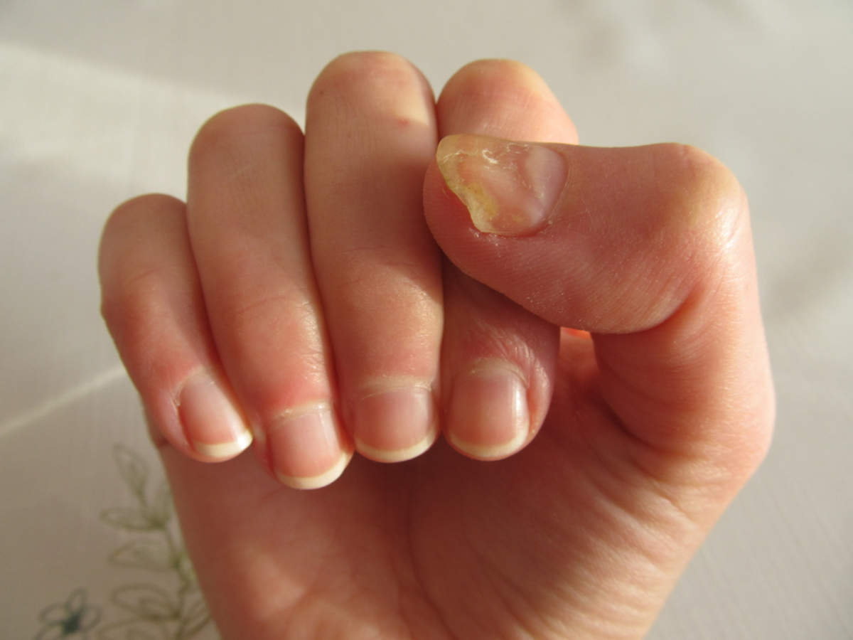 Yellow Nails What Causes
