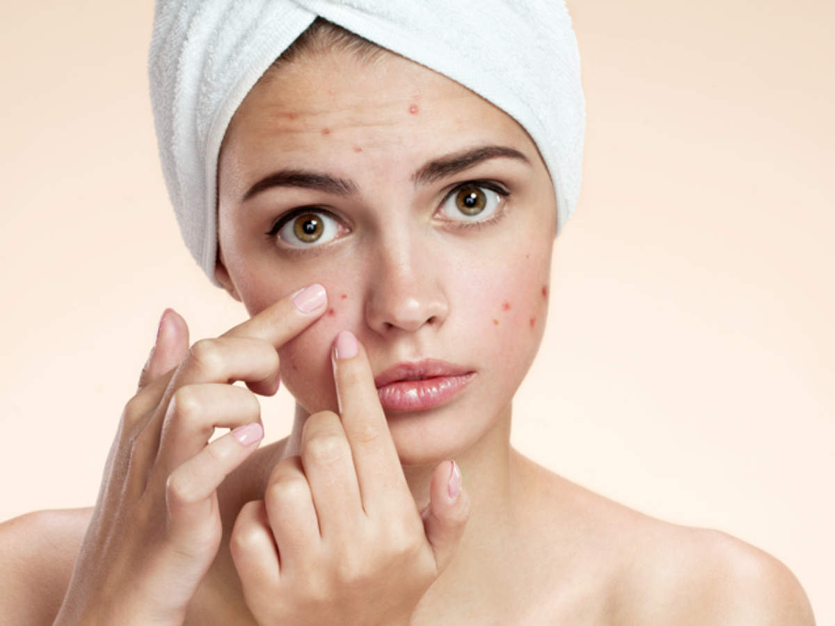 Teen Acne (Pimples): How to Get Rid of Teen Acne | Acne