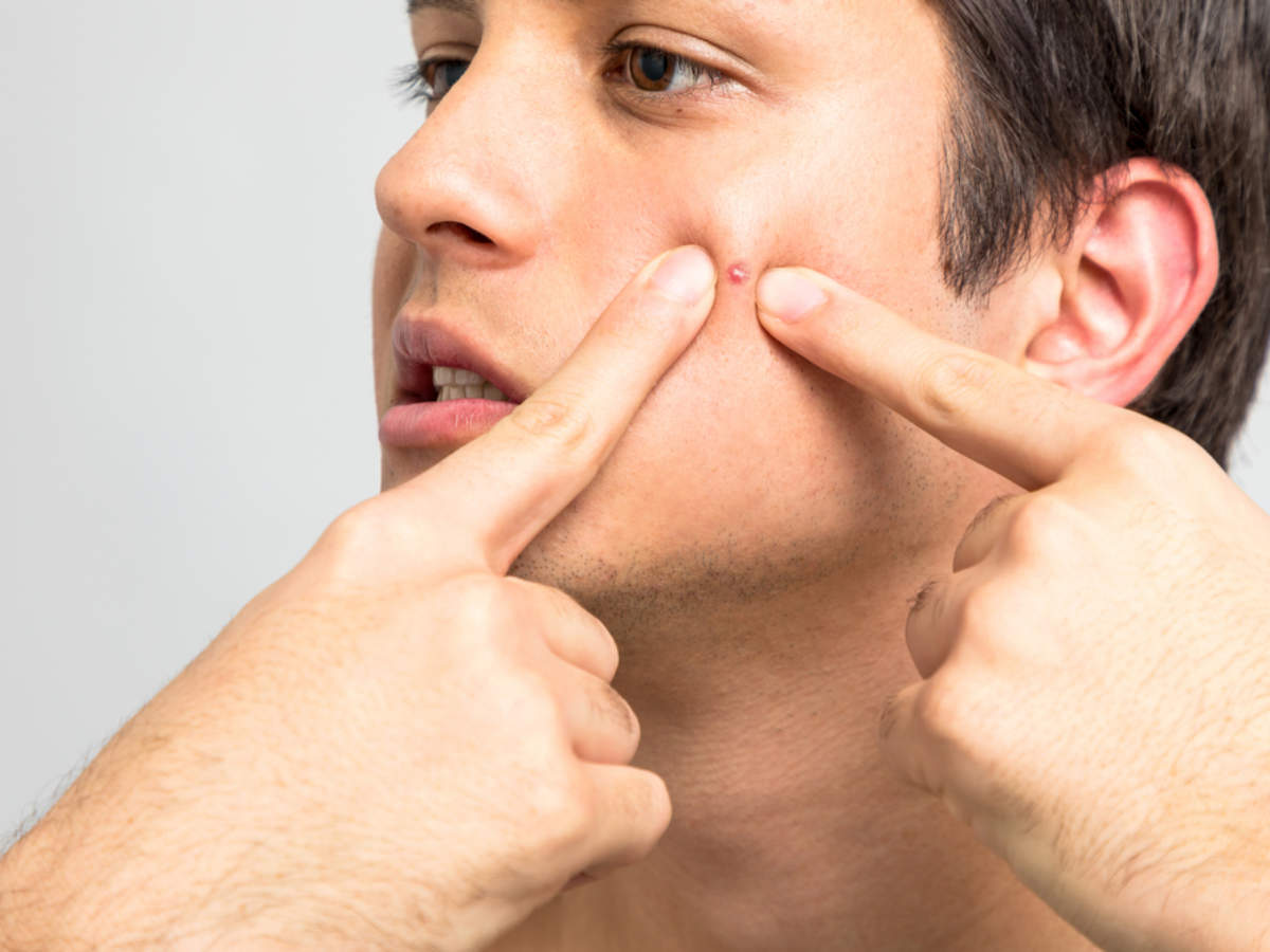 What gets rid of spots quick