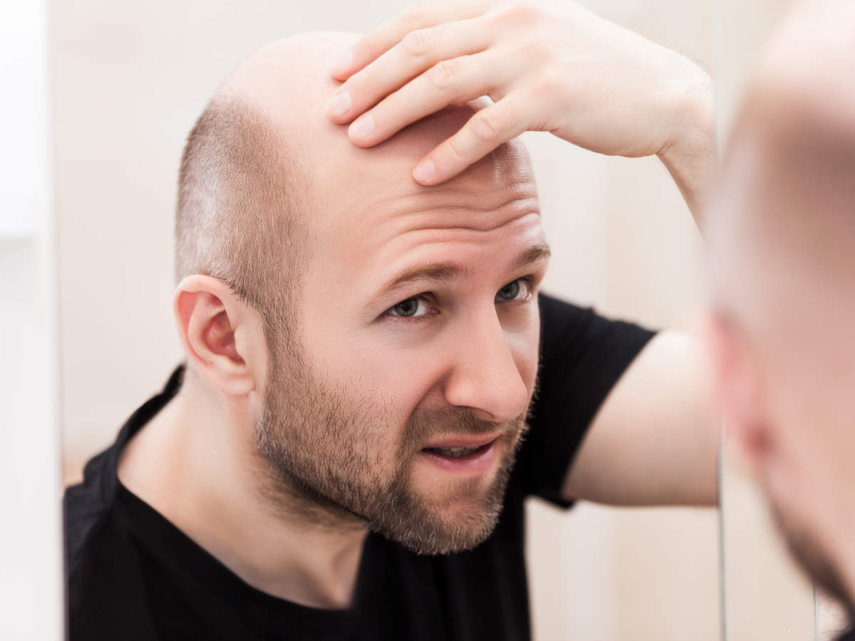Hair Loss Treatment Medicines For Hair Fall And Hair Regrowth Times Of India