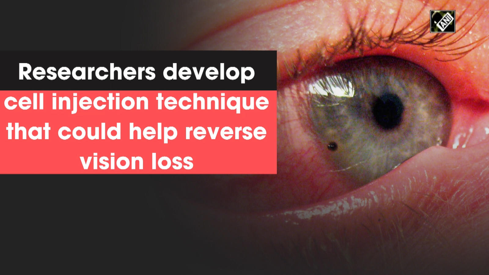 researchers-develop-cell-injection-technique-that-could-help-reverse-vision-loss