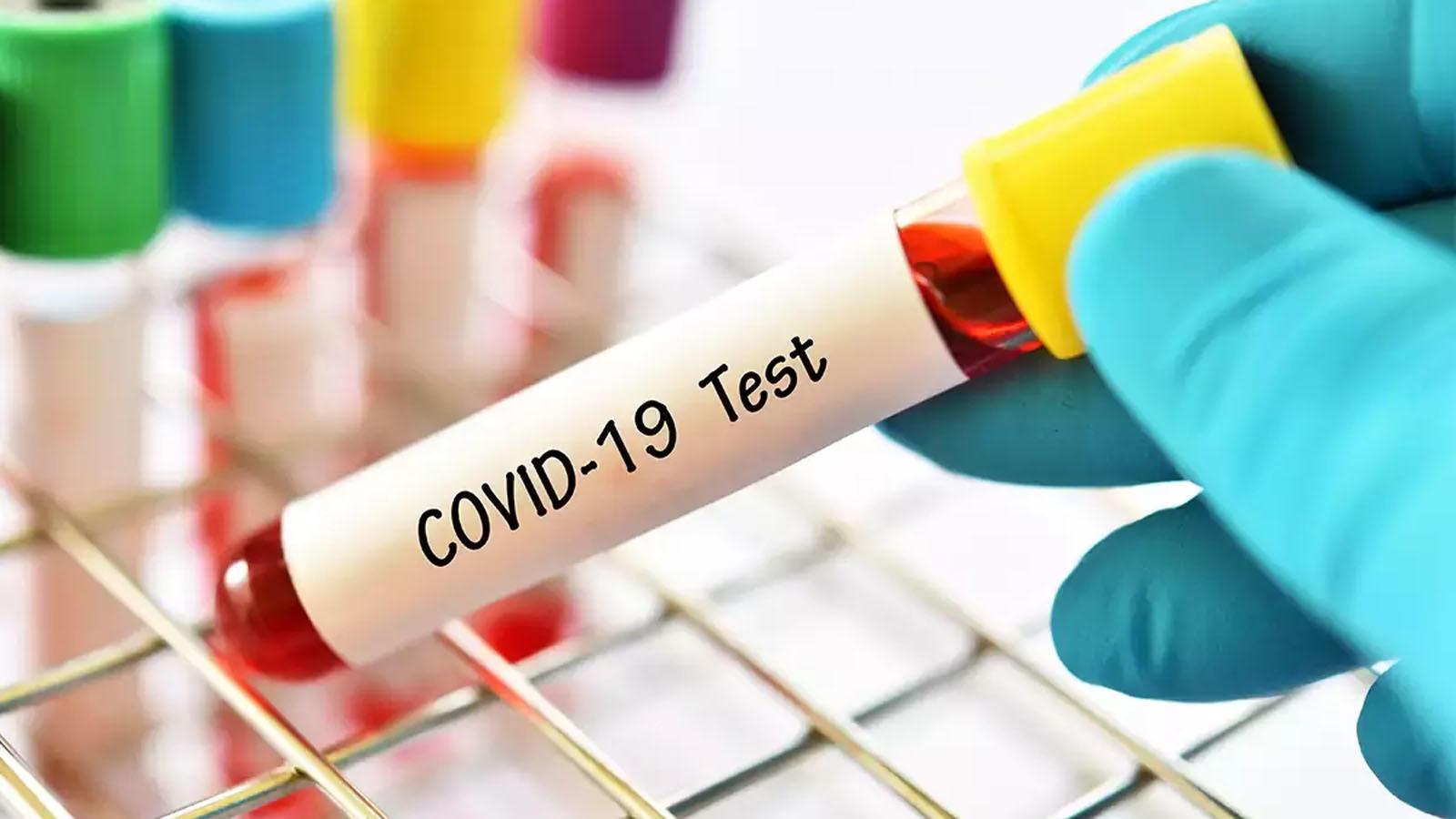 covid-19-chhattisgarh-punjab-odisha-lead-slowdown-in-new-cases