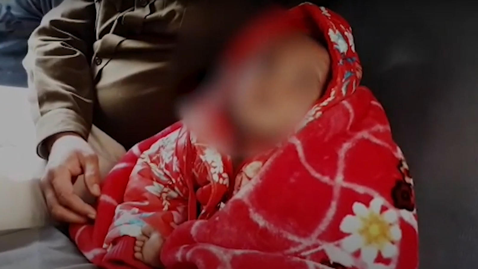 jabalpur-2-year-old-abandoned-baby-girl-mauled-by-the-dogs-cops-launch-search-for-parents