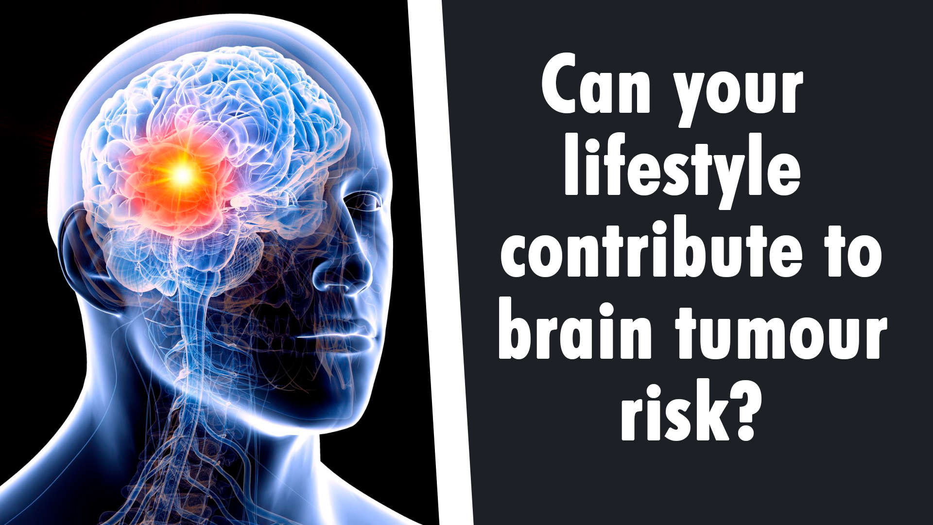 can-your-lifestyle-contribute-to-brain-tumour-risk