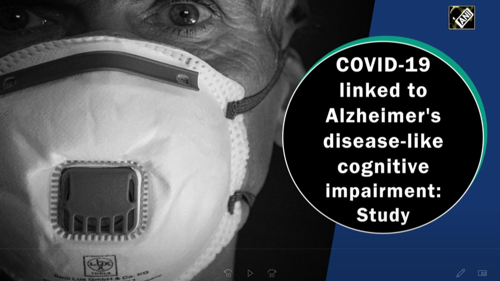 covid-19-linked-to-alzheimers-disease-like-cognitive-impairment-study