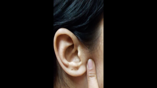 Ear point