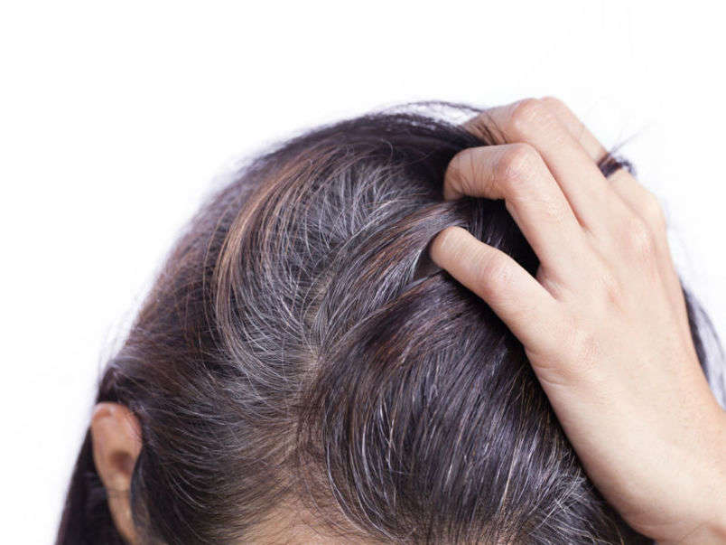 Grey Hair Home Remedies How To Get Rid Of Grey Hair Naturally