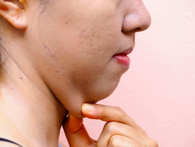 how headed for hurting overweight wrong your face