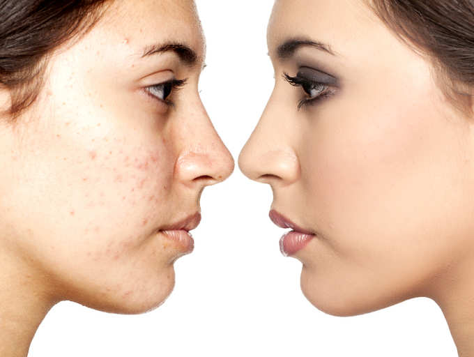 5 Best Ways To Remove Blemishes Naturally The Times Of India