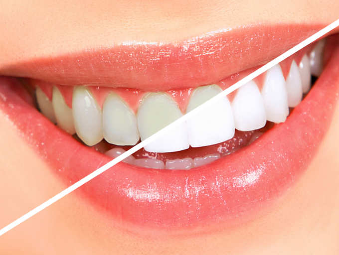 Four Home Remedies To Whiten Your Teeth The Times Of India
