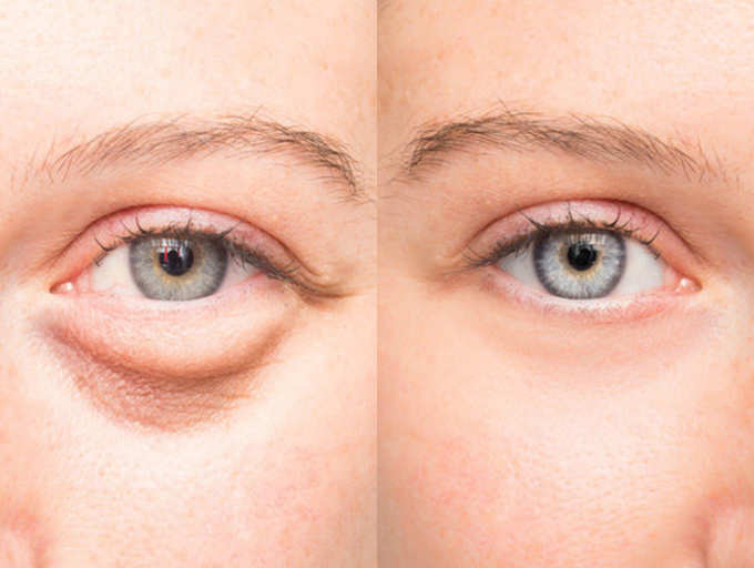 5 tips to overcome puffy eyes