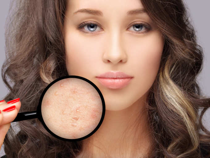 What is a blind pimple?